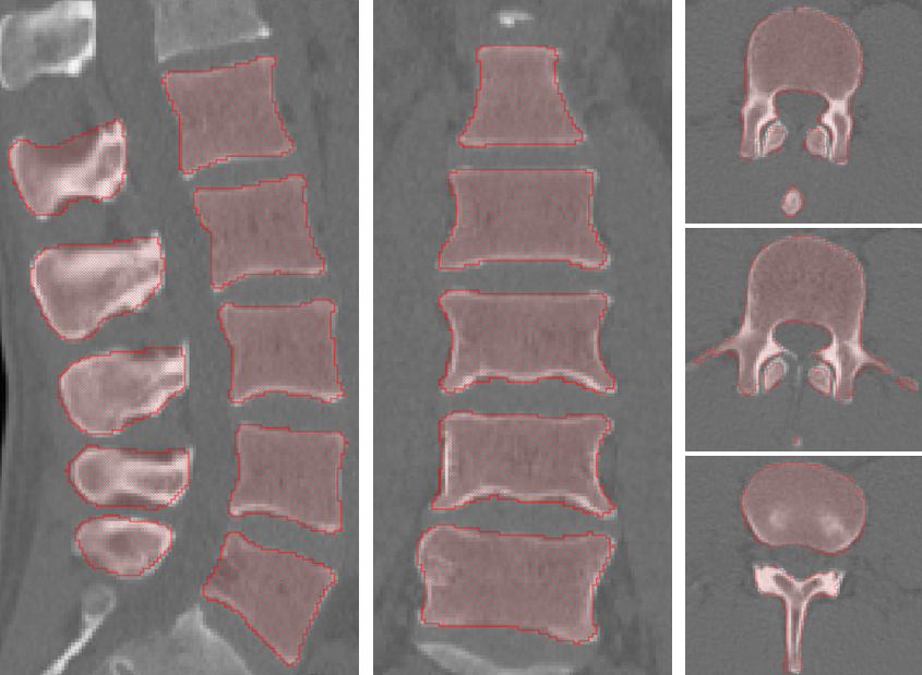 quiz lumbar vertebrae anatomy l1 to l5 - 845×619